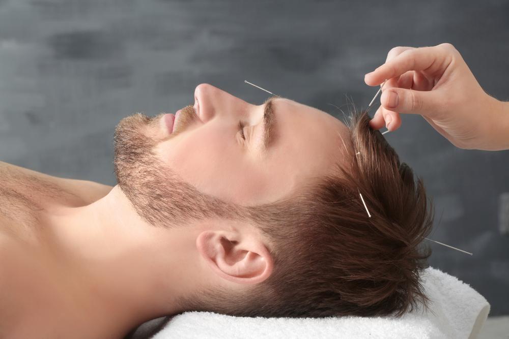 Acupuntura para dor de cabeça: conheça essa poderosa terapia