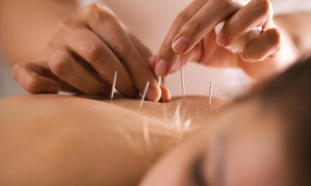 acupuntura
