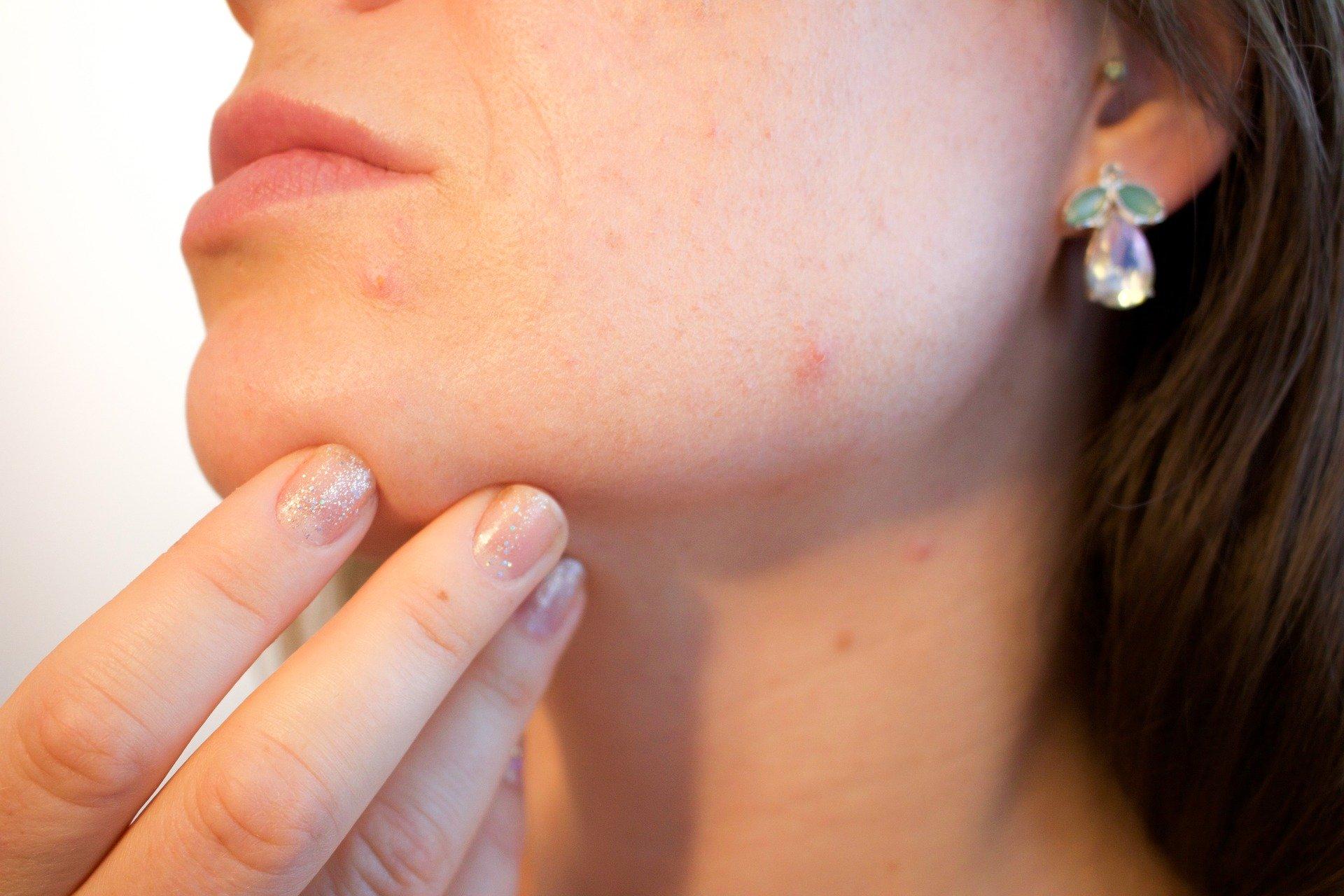 Dermatologista: procedimentos estéticos que podem ajudar